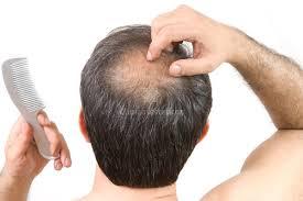 plasma capilar para evitar la caída de pelo.