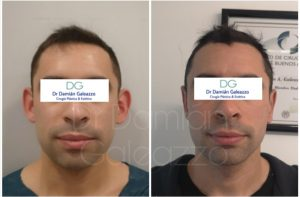 Cirugía de orejas Otoplastia