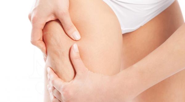 La Carboxiterapia combate la celulitis