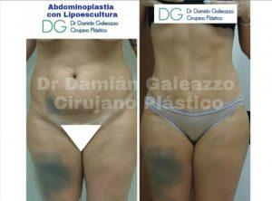 abdominoplastia con marcación abdominal