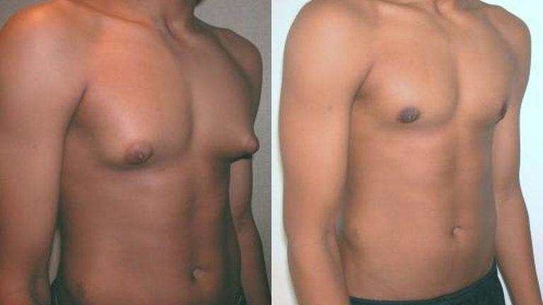 Ginecomastia: Glándula mamaria hombre - operación y tratamiento
