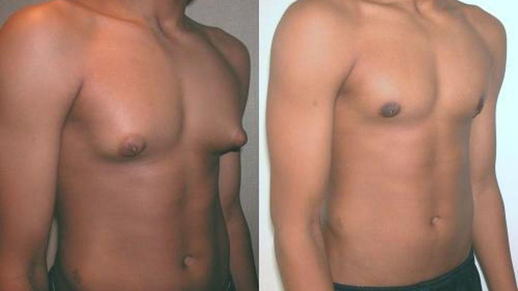 Ginecomastia Operación y Tratamiento - Glándula Mamaria