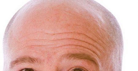 Implante Capilar sin cicatriz técnica FUE