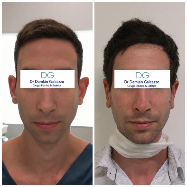 cirugia de orejas otoplastia